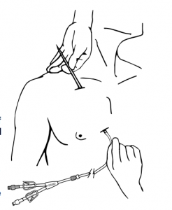 Insertion of the Hickman catheter