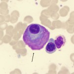 Multiple myeloma flame shaped plasma cell